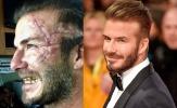 Khán giả sắp được xem phim bom tấn có Beckham mặt sẹo