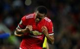 5 điểm nhấn sau trận Man Utd 4-1 Burton: Báu vật Martial, bi kịch của Rashford