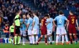 Bàn thắng thì không, nhưng thẻ đỏ lại xuất hiện tại Derby thành Rome