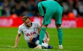 Liên tiếp thất bại trước De Gea, Kane đáng thương đến nhường nào sau trận?