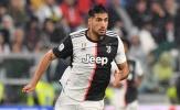 """""""Điều này ở Juventus khiến tôi tức giận'"""