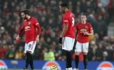 3 sao Man Utd tệ nhất trận gặp Burnley: Cạn lời 'số 10'; 80 triệu 'vứt đi'?