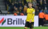 Marco Reus có thể nghỉ đến hết mùa vì chấn thương