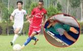 Cựu đội trưởng Đắk Lắk gặp tai nạn kinh hoàng, phải cưa chân để giữ lại mạng sống