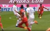 CHOÁNG! Sao Bayern chấn thương rợn người, gây ám ảnh NHM