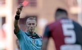 HLV Ý bị đuổi khỏi sân sau khi đánh học trò