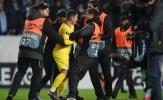 Hazard gặp sự cố với CĐV quá khích