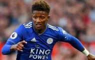 Sao Leicester: ''Tôi nghĩ mọi người đều đang sợ chúng tôi''