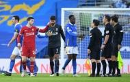 Sau tất cả, Welbeck đã lên tiếng về việc Liverpool bị thổi phạt đền