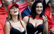 CĐV Albania ngực khủng bốc lửa khoe sắc trước Pháp