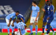 Pep Guardiola xác nhận, Man City gặp tổn thất cực lớn