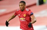 XONG! Rõ lý do Anthony Martial bị loại khỏi đội hình Man Utd