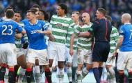 Lịch sử thù hận Celtic vs Rangers