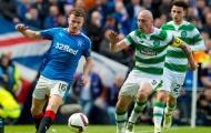 Ghét Celtic, các cầu thủ Rangers bị cấm mặc đồ xanh
