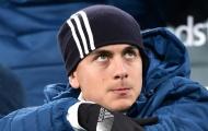 Allegri ra sức bảo vệ Dybala trước sự chỉ trích của sếp phó Juventus