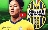 Tài năng đặc biệt của Seung-Woo Lee (Hellas Verona)