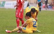 Điểm tin bóng đá Việt Nam sáng 28/02: Trò cưng thầy Park chấn thương, U22 có quân xanh từ châu Âu