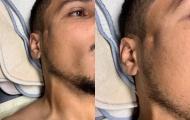 Kinh dị! Ibrahimovic thúc cùi chỏ... gây lõm mặt, vỡ xương đối thủ