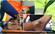Toàn cảnh thảm họa Son Heung-min gây ra cho Andre Gomes