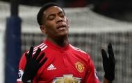 'Tương lai của Martial là một cầu thủ dự bị'