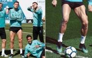 10 danh thủ sở hữu bắp chân 'cực dị': CR7 và 'mục tiêu' của Man Utd