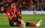 'Thánh' Lingard chấn thương, Man Utd nên vui?