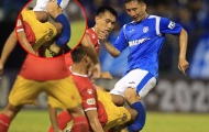 SỐC: 'Iniesta xứ Mỏ' gãy gập xương ống đồng, vụt mất cơ hội lên tuyển