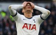 Thua trận, Mourinho tiết lộ lý do thay Alli khỏi sân ngay sau hiệp 1