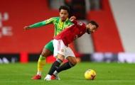 Fernandes gây choáng, M.U đã phát hiện một 'bản nâng cấp' của Shaw