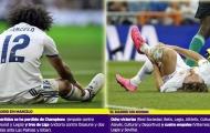 Chấn thương khiến Real Madrid mất gần 1.000 ngày
