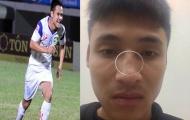 Cầu thủ Đắk Lắk tố bị cựu tiền đạo U23 Việt Nam đấm gãy sống mũi