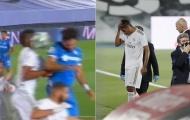 'Hưởng trọn' quả bóng vào mặt, sao Real rời sân ngay phút 20