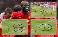 Đen như Man Utd, người hay nhất lại chấn thương nặng nhất!