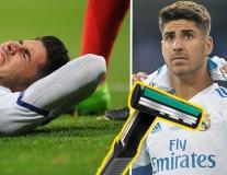 Cạn lời với Asensio không thể thi đấu vì... cạo lông chân
