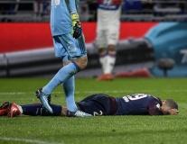 CẬN CẢNH: Mbappe thương tích đầy mình sau trận thua Lyon