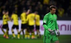 Manuel Neuer khiến người Bayern đau đầu