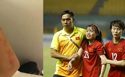 Bị ném đá vì tô son khi ra sân, nữ tuyển thủ Việt Nam viết tâm thư nghẹn ngào