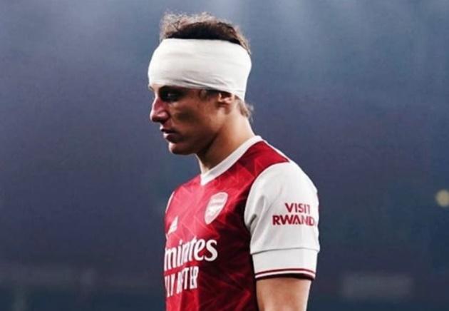 Jimenez phải phẫu thuật, Luiz đăng đàn lên tiếng