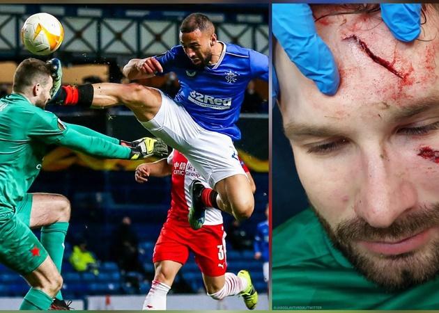 SỐC! 'Tung cước' kinh hoàng, học trò của Gerrard khiến đối thủ đổ máu - Bóng Đá
