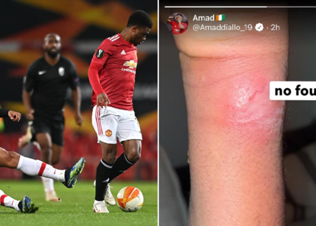 Manchester United starlet Amad Diallo shows off battle scar and fumes over Granada foul - Bóng Đá