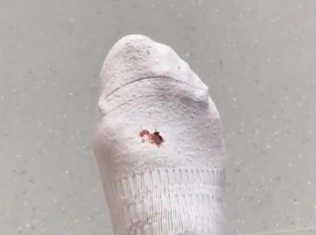 Lacazette hurt by Xhaka in Arsenal training as he shows off bloody hole in sock and jokes 'I thought we were friends' - Bóng Đá