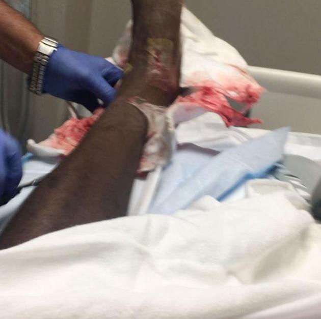 Jackson Martinez phờ phạc sau hai lần chữa chấn thương mắt cá - Bóng Đá