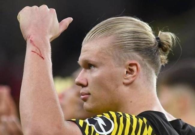 Lý do Haaland và Reus vắng mặt ở trận thua Gladbach? - Bóng Đá