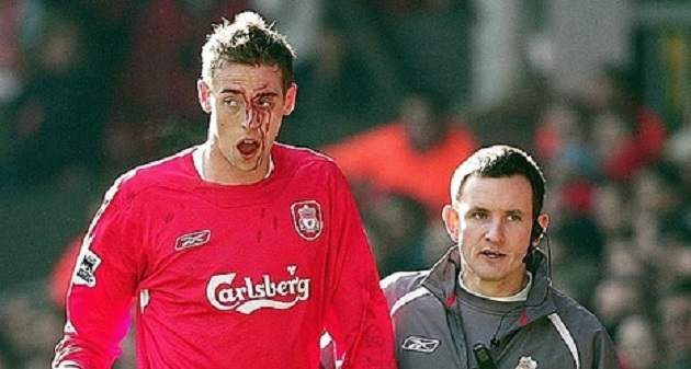 PETER CROUCH: There isn't a bigger fixture than Liverpool against Manchester United...and I've got the scar from the FA Cup fifth round tie - Bóng Đá