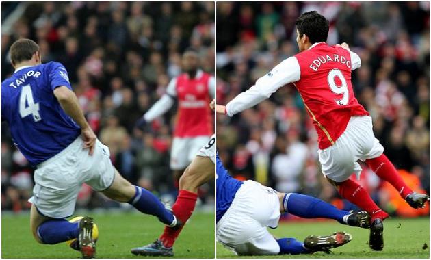 Những tình huống gãy chân kinh hoàng: Niềm đau cho Arsenal và Man Utd! - Bóng Đá