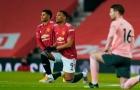 Ferdinand điểm mặt 2 ngôi sao MU 'ăn hại' nhất trước Sheffield