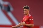 XONG! Man United nhận tin dữ trước trận tái đấu Roma