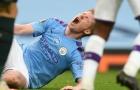 Pep xác nhận, 'ác mộng' đối với Kevin de Bruyne và Man City