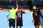 CHOÁNG! Sao Man City hứng trọn cú vào bóng ghê rợn từ cầu thủ Leeds