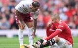 Man United hứng chịu 2 tổn thất lực lượng
